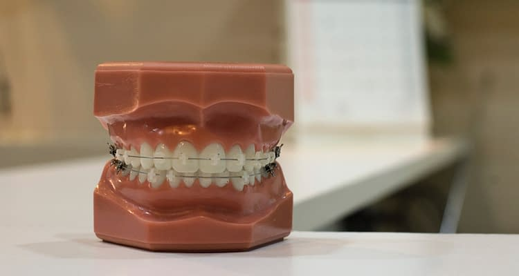 white teeth dentures